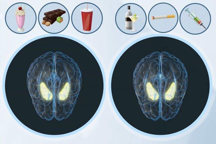 Bild von betroffenen Gehirnarealen bei Konsum von Suchtmittel oder Süssem, Forschungsergebnis Max Planck Institut