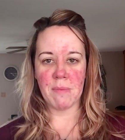 Rosacea Hautpflege Tipps