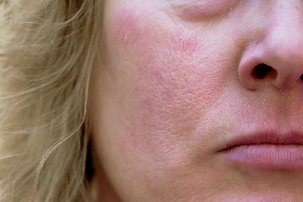 Nahaufnahme eines Frauengesichts mit stark geröteten Hautstellen aufgrund Zucker-Einlagerung