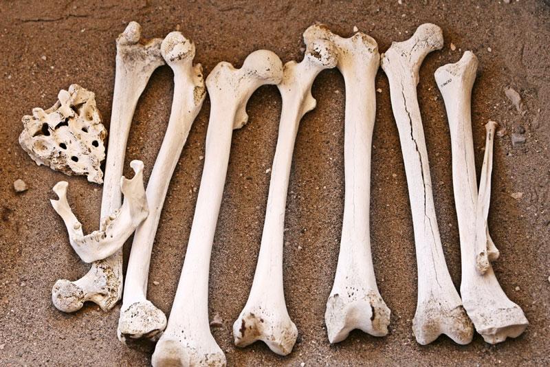 Sind schwere Knochen Ursache fürs Dicksein