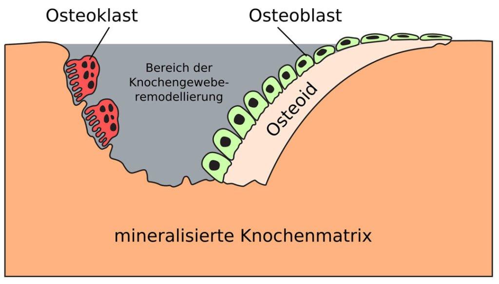 Mineralisierte Knochenmatrix