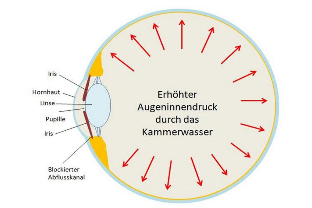 Durch die Blockade kann das Kammerwasser nicht mehr abfließen. Es kommt zum erhöhten Augeninnendruck.